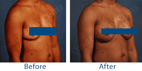 See before-and-after pictures of breast augmentation patients in Louisville, KY, who received a natural-looking result with silicone implants.