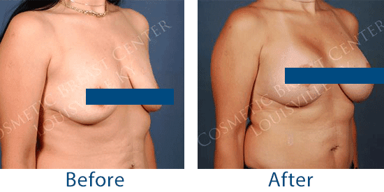 This woman underwent a combined breast augmentation and breast lift to both address sagging tissue and add volume to the breasts in Louisville, KY.